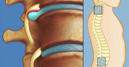 Лечение межпозвоночной грыжи без лекарств и операции