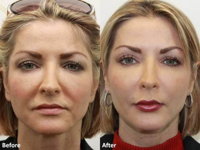 Даже самая дряблая кожа лица подтянется после этой процедуры!