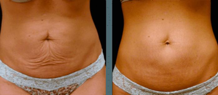 20 способов подтянуть кожу после потери веса!