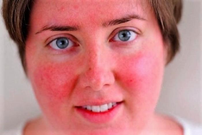 Красное лицо как избавиться